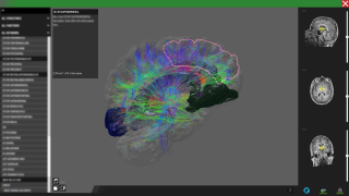 Desktop – medical viewer (brain) – Science and Industry